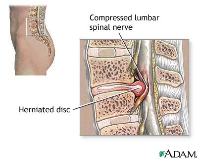 herniated disc side view