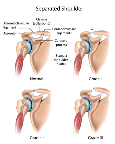 Can AC Joint Separation be Treated Without Surgery?   Fort Collins ...